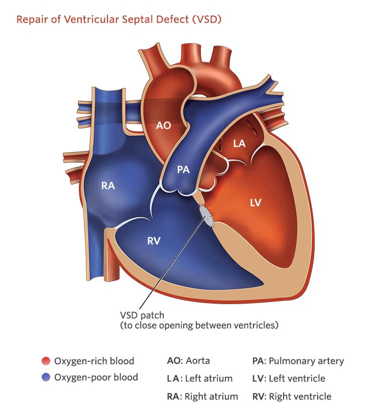 Боли в сердце при ВСД: симптомы, признаки, лечение